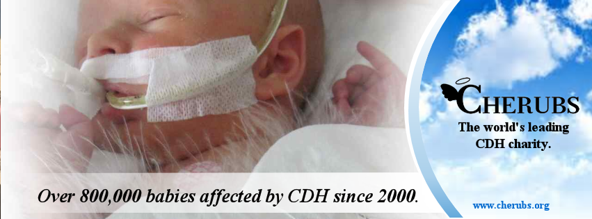 Over 800,000 babies affected by CDH